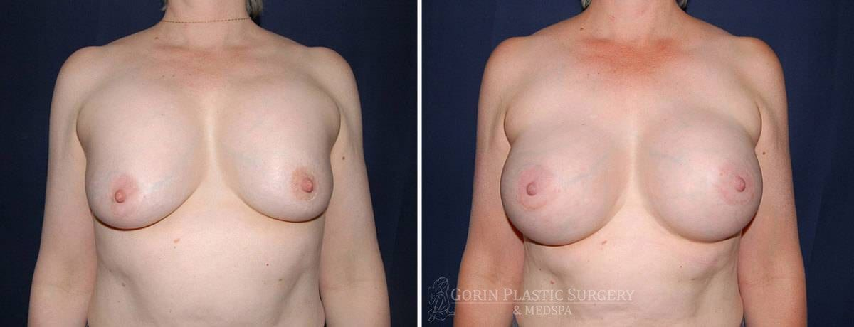 breast implants before and after front view 77