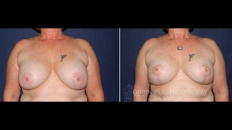breast implants with lift before and after front view 34