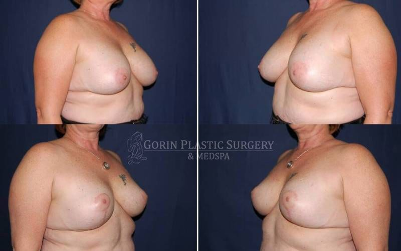 breast implants with lift before and after side view 33