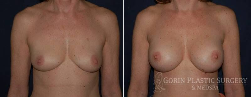 breast augmentation before and after front view 25