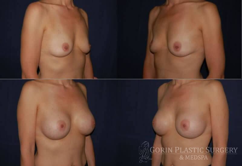 breast augmentation before and after oblique view 15