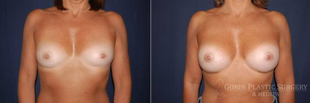 breast augmentation before and after front view 34