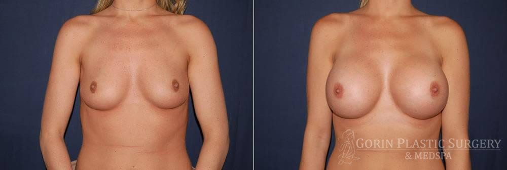 breast augmentation before and after front view 31