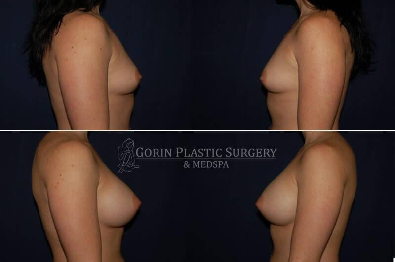 breast augmentation before and afters side view 10