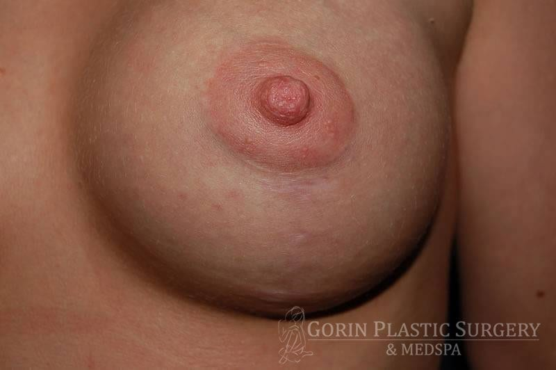 left areola close up after breast lift