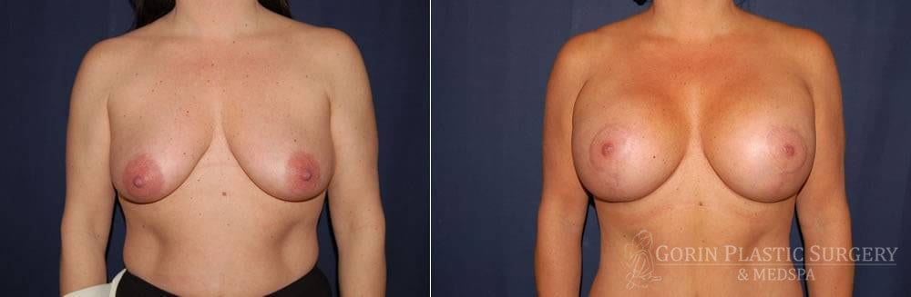 breast augmentation with lift before and after front view 51