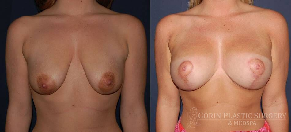 breast augmentation with lift before and after front view 3
