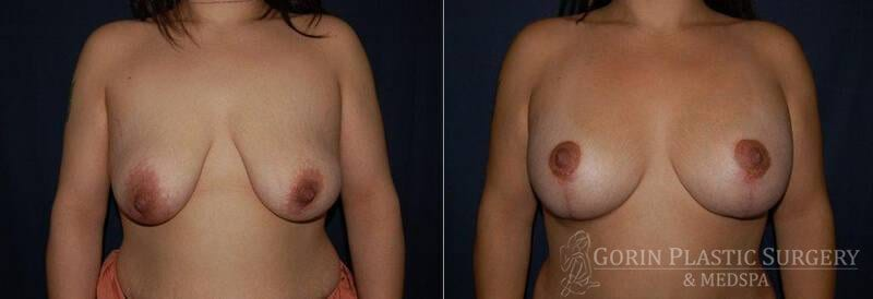 breast augmentation with lift before and after 4