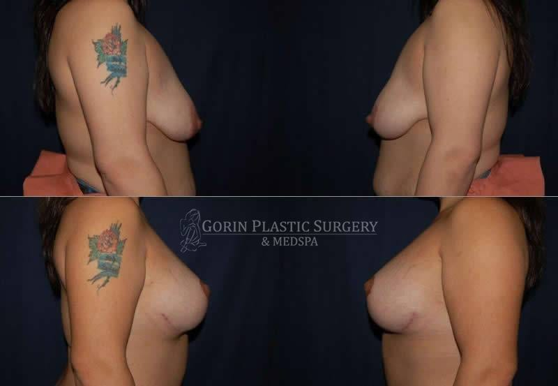 breast augmentation before and after side view 44