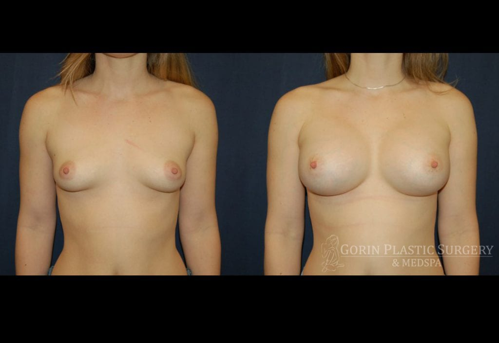 breast augmentation before and after frontal 5