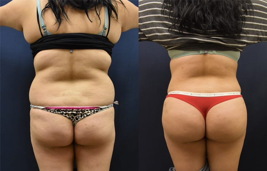 before and after posterior view may 18