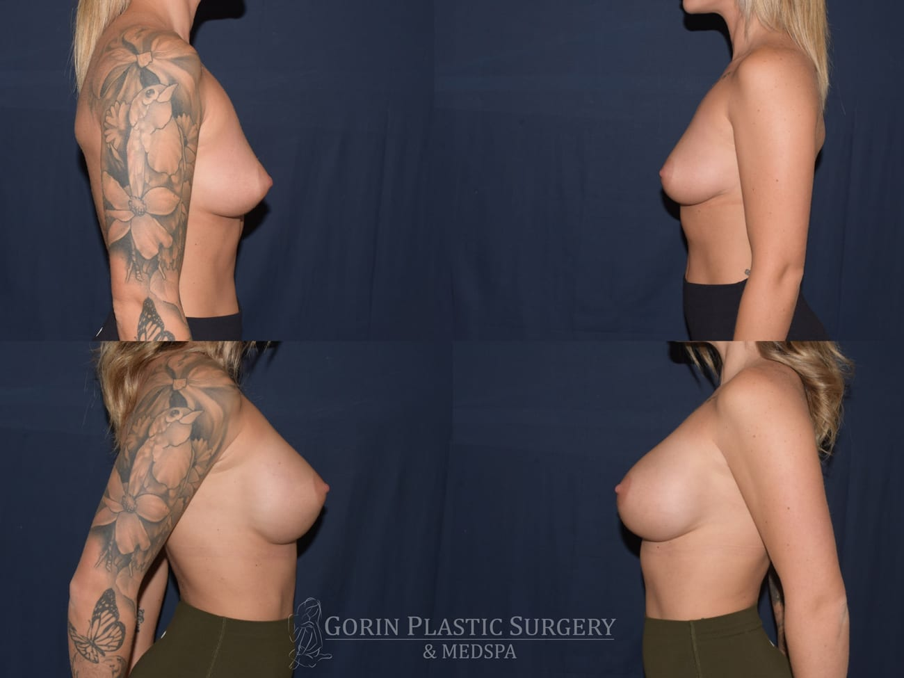 breast augmentation patient 5 side before and after photo