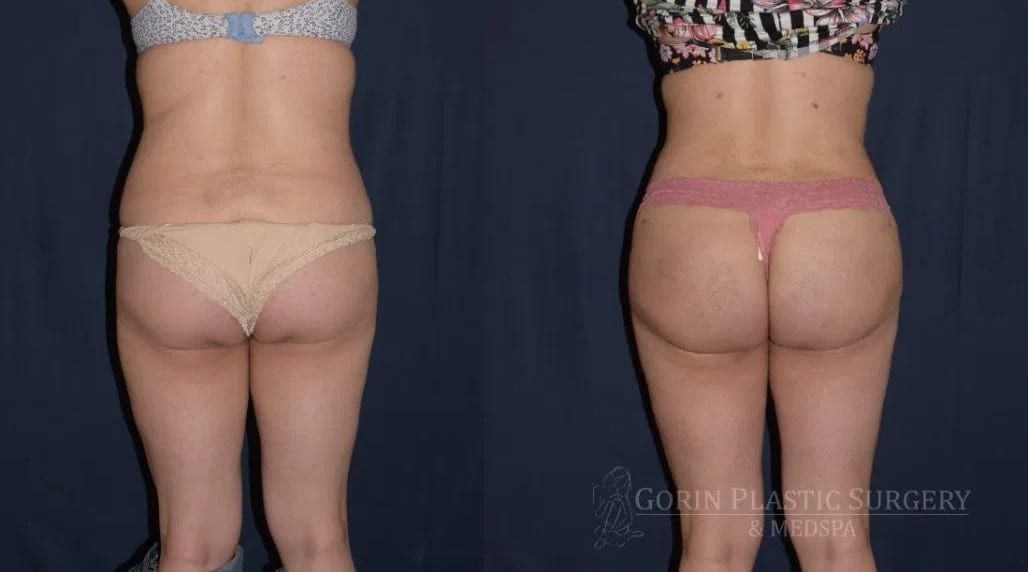 Brazilian Butt lift before and after patient 4 posterior