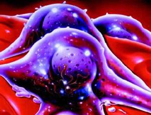 cellule di melanoma