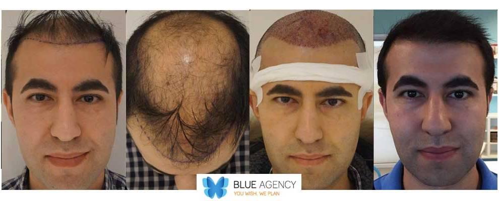trapianto dei capelli prima e dopo il trattamento