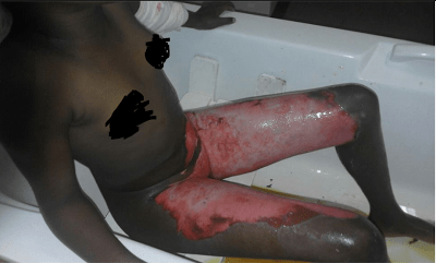 Shocking! Woman Burns Her Husband And Sister After Catching Them In Bed (Graphic Photos)