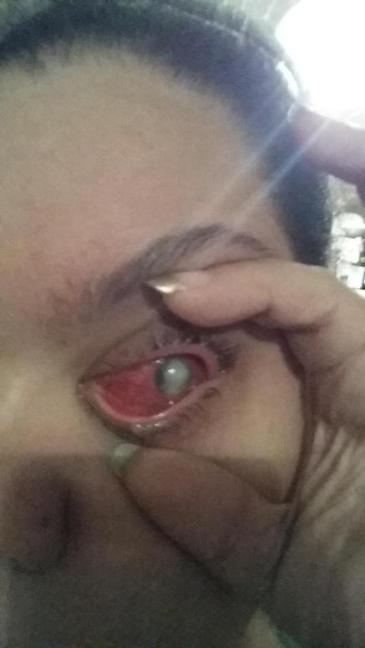 Makeup-glitter-causes-blindness_1