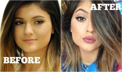 before-and-after-kylie-jenner