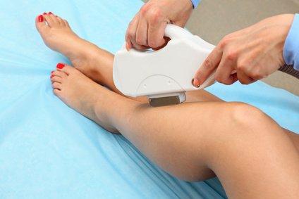 negligencia depilacion laser