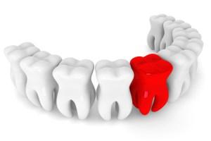 gracey-backer-dental-risk-management