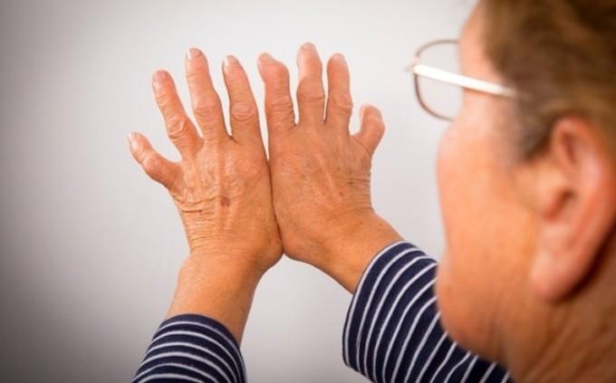 artritis-huesos