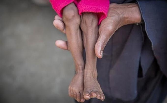 SAVE DE CHILDREN DESNUTRICION