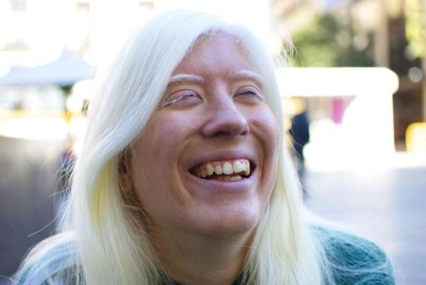 Patty-bonet-albinos
