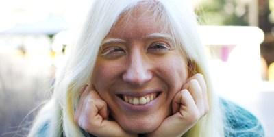 Patty es albina y tiene una discapacidad visual. Sonríe y sueña