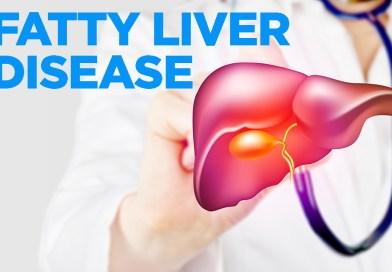 Grant fatty Liver Disease