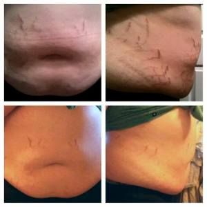 fb party post 19 stretch mark cream one month twice a day 2