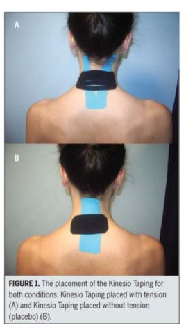 Kinesio taping for car accident