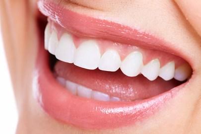 「歯」の画像検索結果