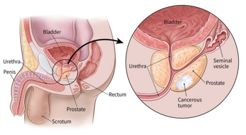 prostate cancer types, causes, treatment