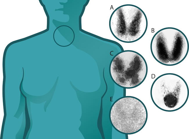 Thyroid Cancer Epidemic of Overdiagnosis