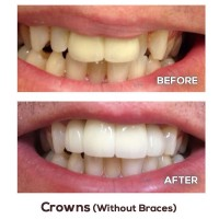 crowns-without-braces