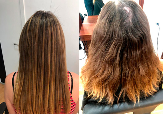 Tratamientos cabello enzimoterapia
