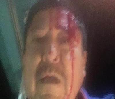Agreden a batazos al periodista Martín Valtierra (Baja California Sur)