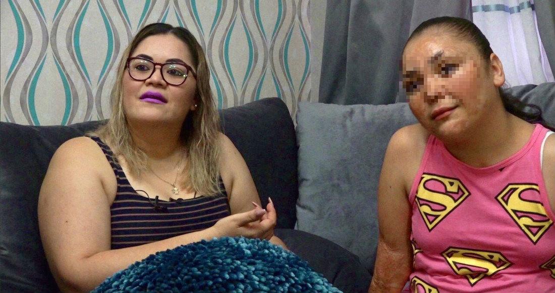Danna lleva 20 cirugías desde el incendio en la Guardería ABC; su familia sueña una vida normal (Sonora)