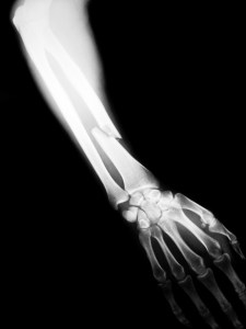 x-ray-arm