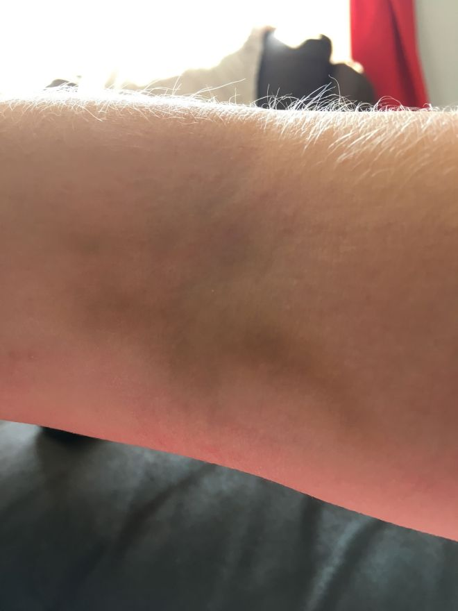 pregnancy BHCG blood test bruise