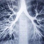 Studio clinico sulla Bronco-Pneumopatia Cronica Ostruttiva (BPCO)