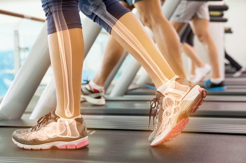 Imagem destaca as pernas e pés de alguém caminhando na esteira com efeito visual mostrando os ossos