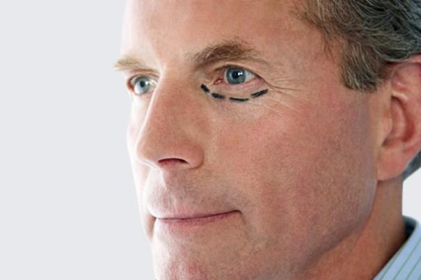 Índice de homens que procuram cirurgias plásticas salta de 5% para 30% - Foto: Pop Mundi