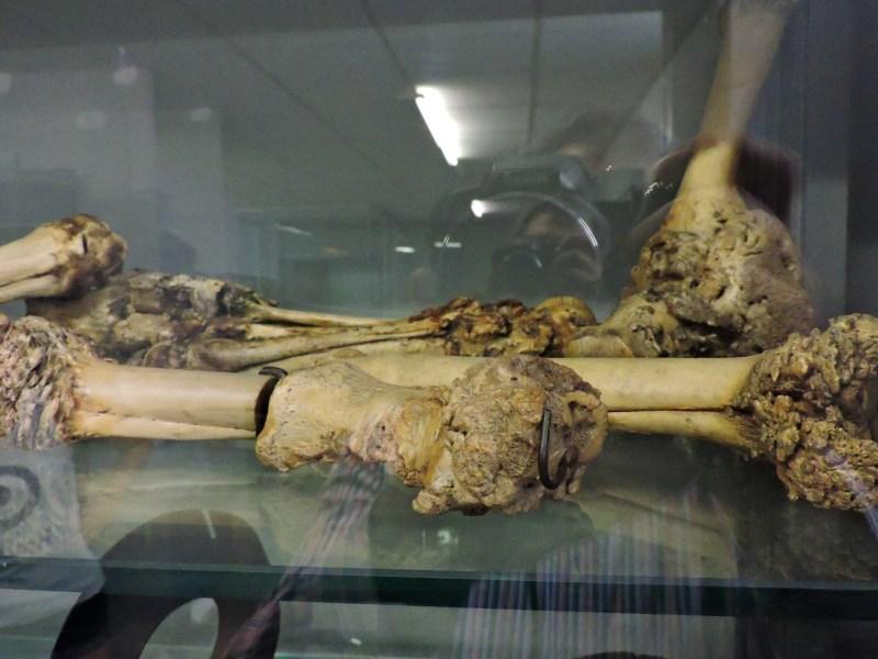 Museo Veterinario Complutense - Alteraciones de cascos de caballos, usados para enseñar causas de cojera a los estudiantes.