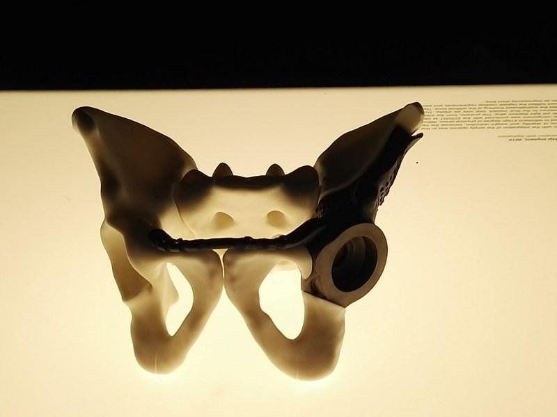 3D Imprimir el Mundo - Y no sólo prótesis externas. También huesos artificiales, u órganos.