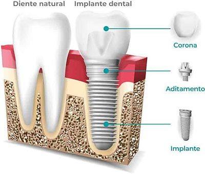 Implante dental Artdenta