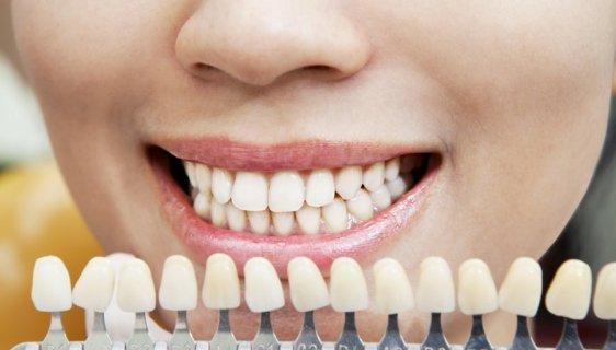 balinimas odontologo kabinete