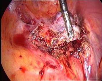 endometriose beelden ovarian remnant