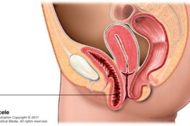 bekkenbodem verzakking, prolaps, urine incontinentie, laparoscopische chirurgie, meshes, hysterectomie, endometriose, images