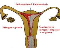 endometriose medicamenteuze behandeling, chirurgische behandeling, laparoscopische chirurgie, pelvische pijn, images